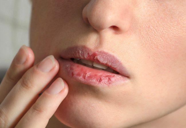 Nie wieder aufgesprungene Lippen – Lippenpflege im Winter und im Sommer