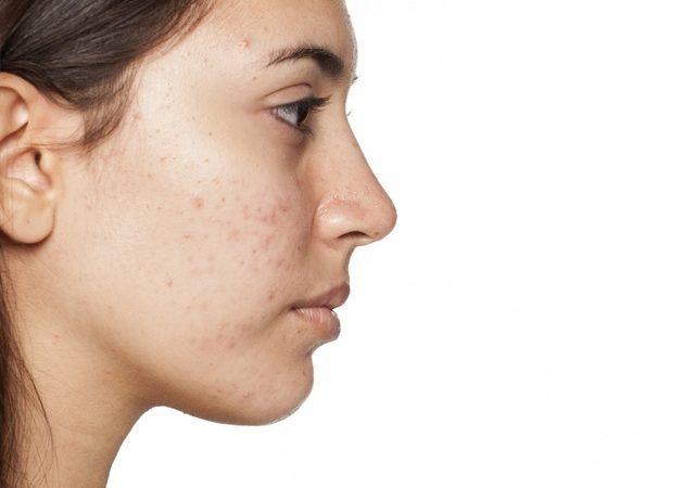 Wie wirken Tabletten gegen Akne?