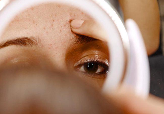 Pickel auf der Stirn: Ursachen und Methoden